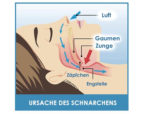 Ursache des Schnarchens